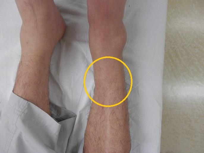 右脛骨骨折1.jpg