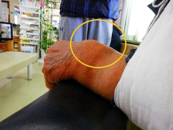 左コーレス骨折2.jpg